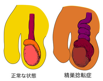 画像 いんのう水腫